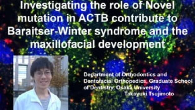【SP-6(O-49)】Baraitser-Winter syndrome を引き起こすACTBの新規変異同定と機能解析